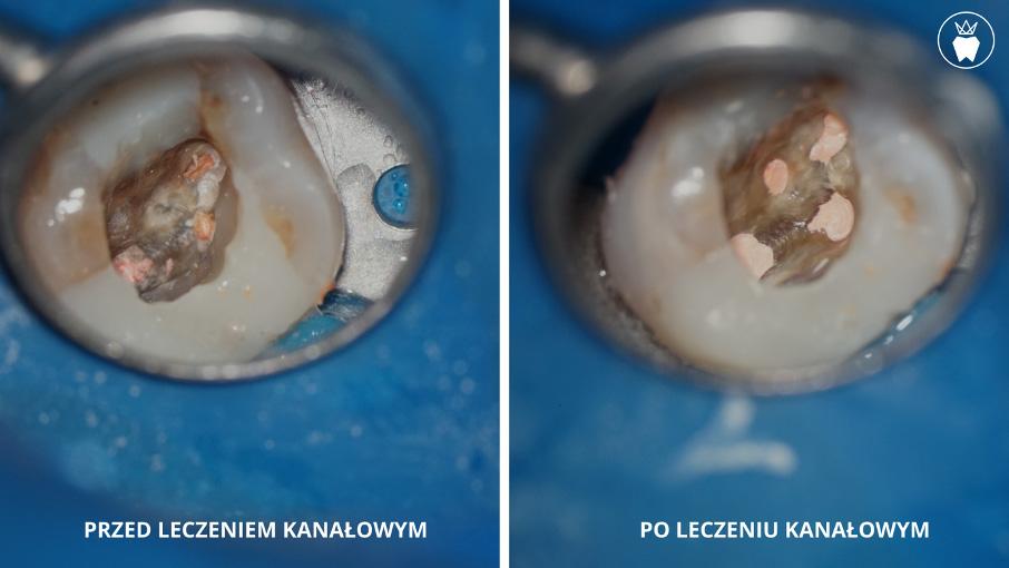 Leczenie Kanałowe Pod Mikroskopem Prime Dental