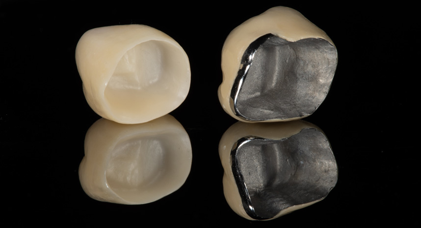 Prime Dental Korony