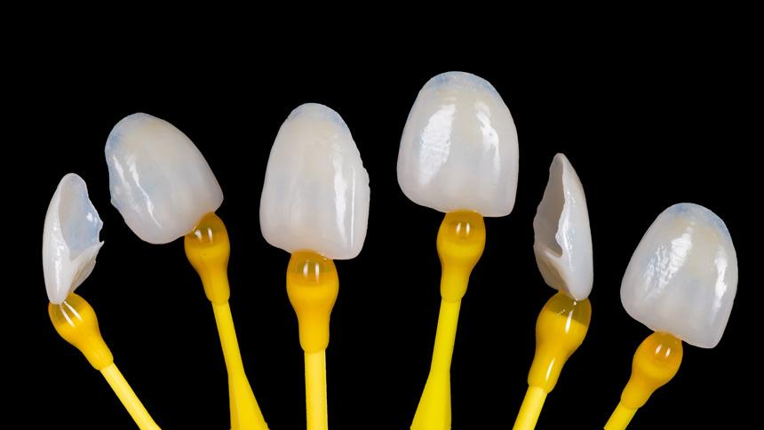 Prime Dental Licówki Veneers
