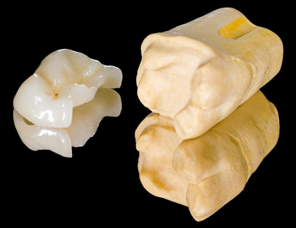 Prime Dental Overlay Onlay