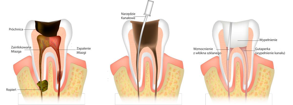 Endodoncja Leczenie Kanałowe Prime Dental