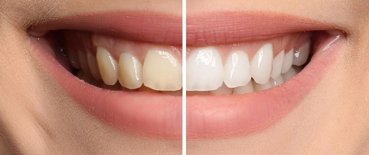 Higienizacja Wybielanie Prime Dental