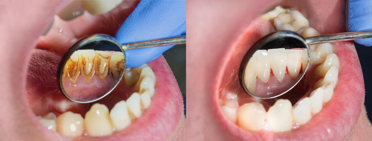 Skaling Prime Dental
