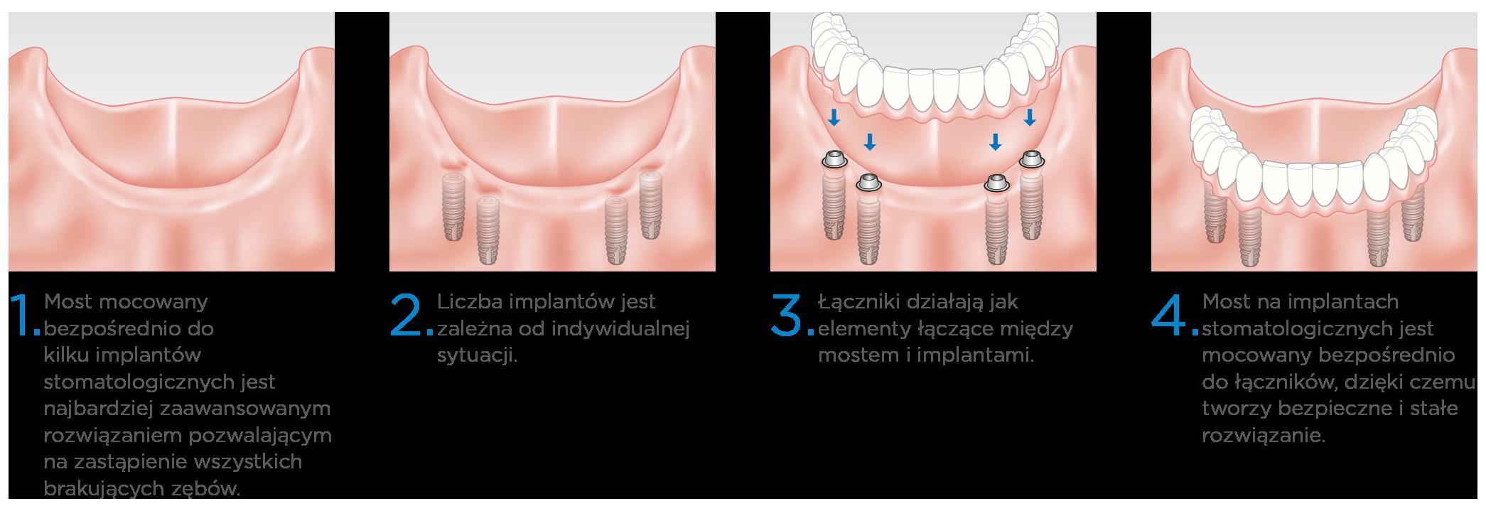Prime Dental Implanty Most Na Wszystkich Zębach