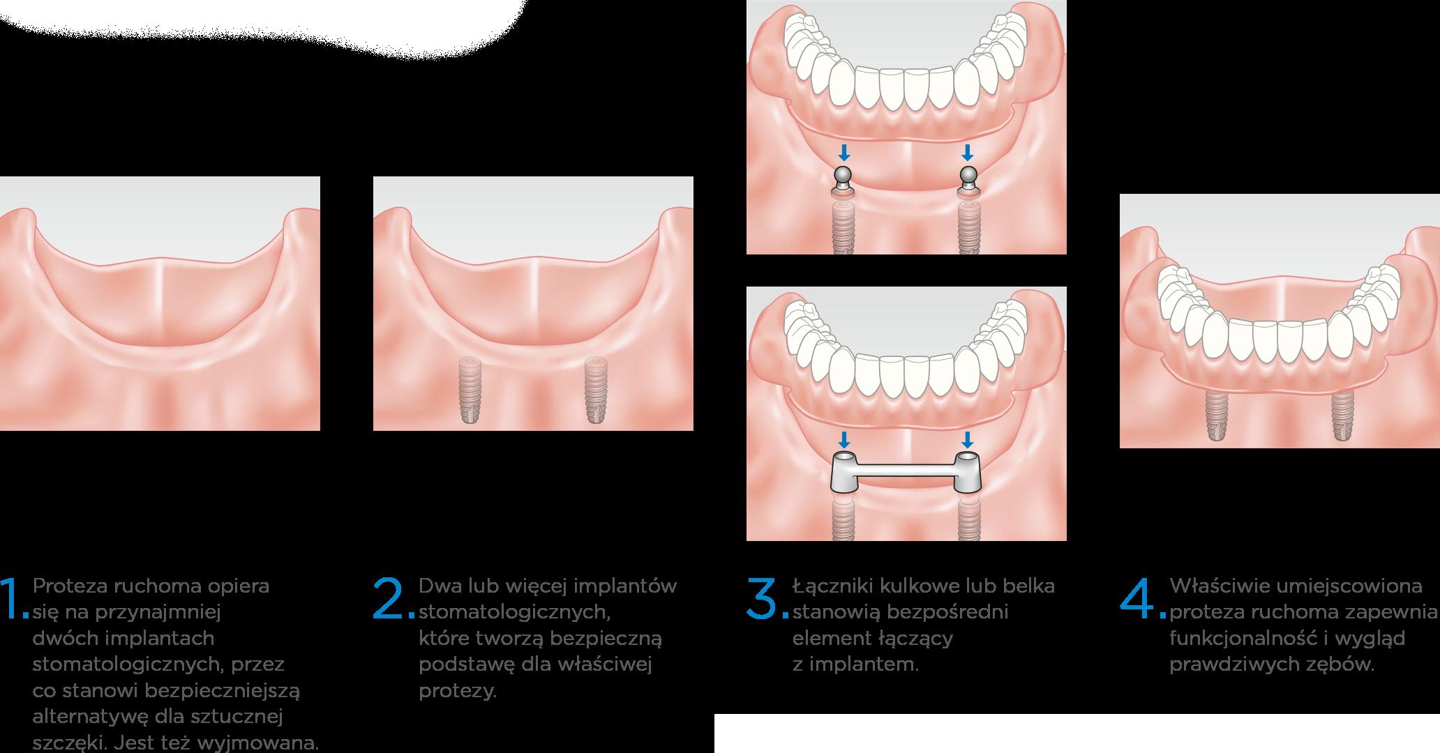 Prime Dental Proteza