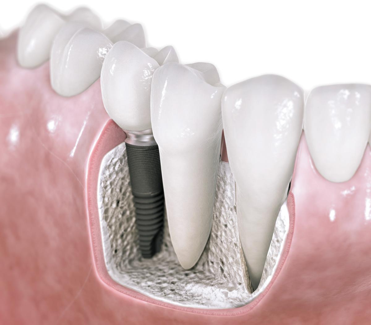 Prime Dental Implanty