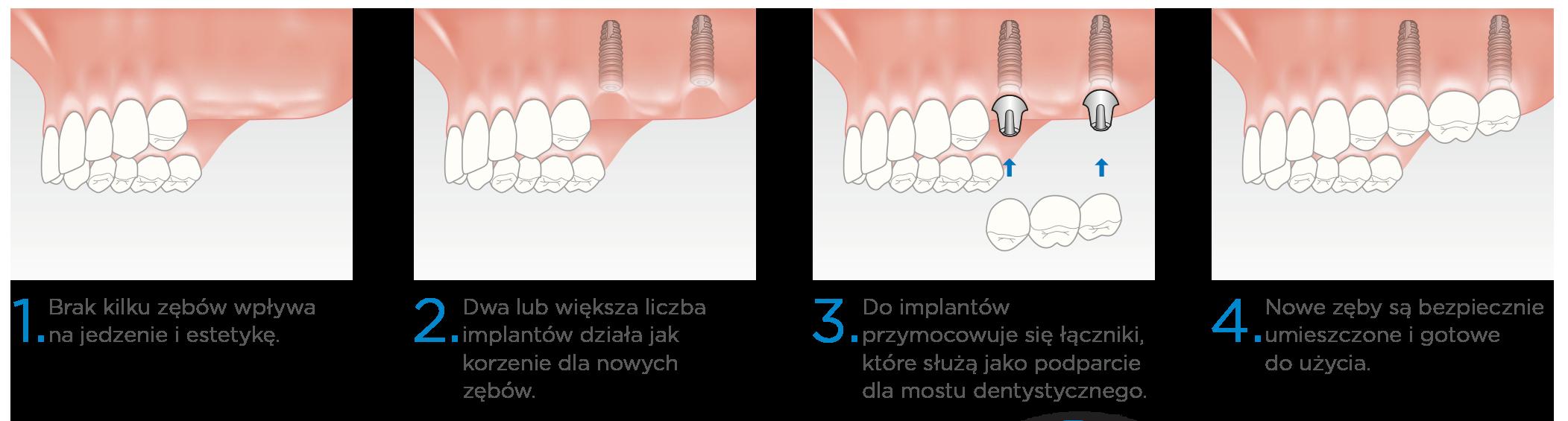 Prime Dental Implanty Kilka Zebow