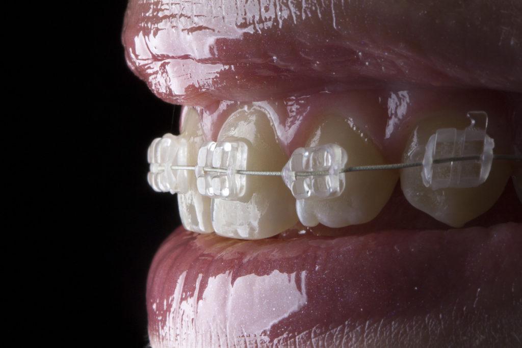 Aparat Ortodontyczny Estetyczny Prime Dental