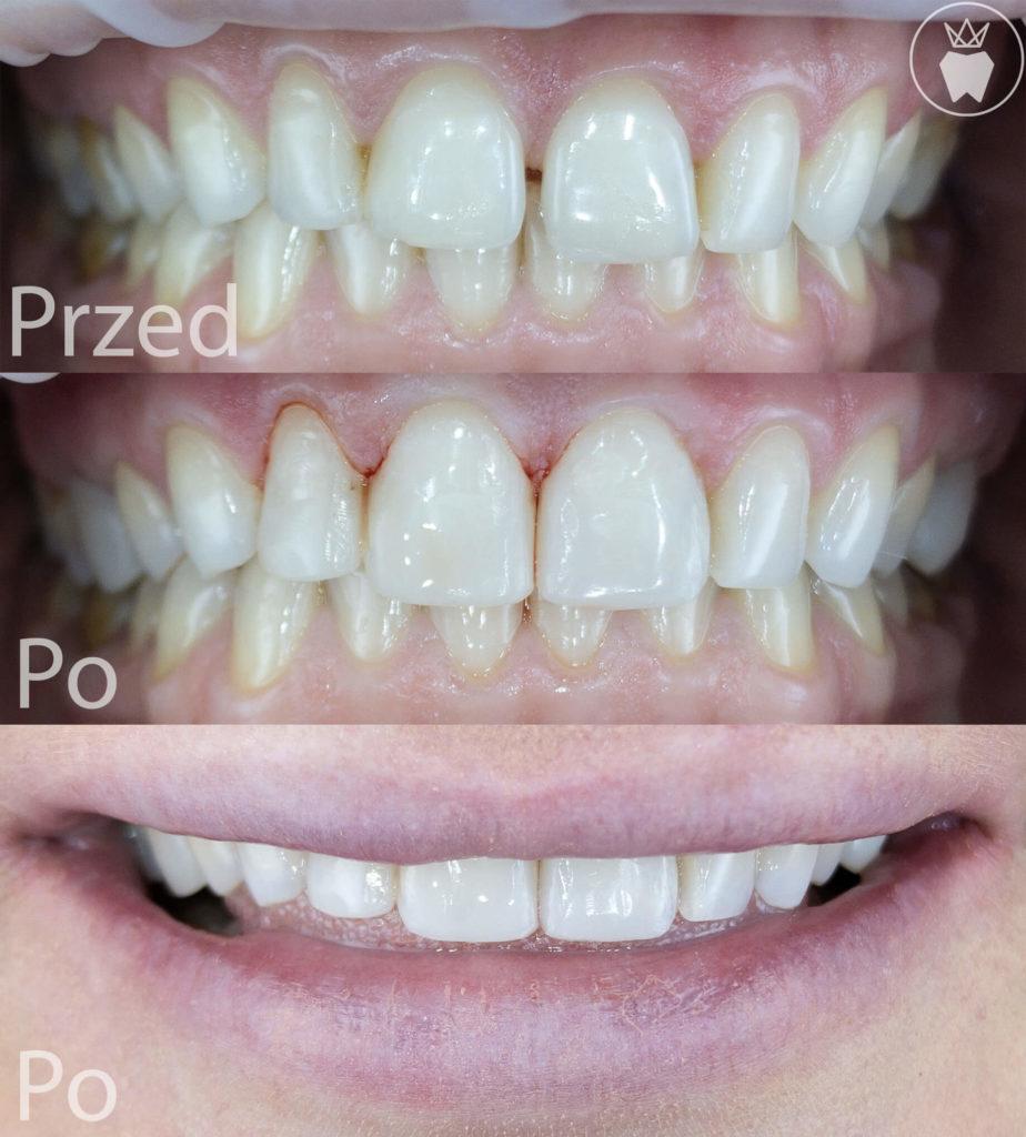 Prime Dental Bonding
